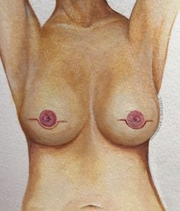 Traditional Nipple Sparing Mastectomy Scars